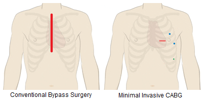 minimal-invasive-CABG-in-delhi