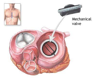 Heart-Valve-Surgery-in-Delhi