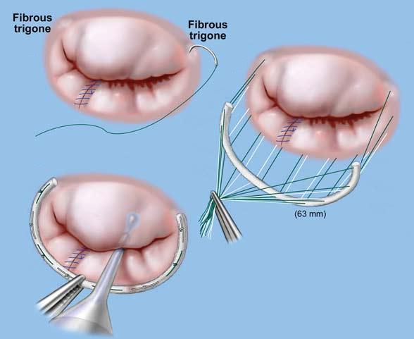 minimally-invasive-heart-valve-surgery-in-delhi