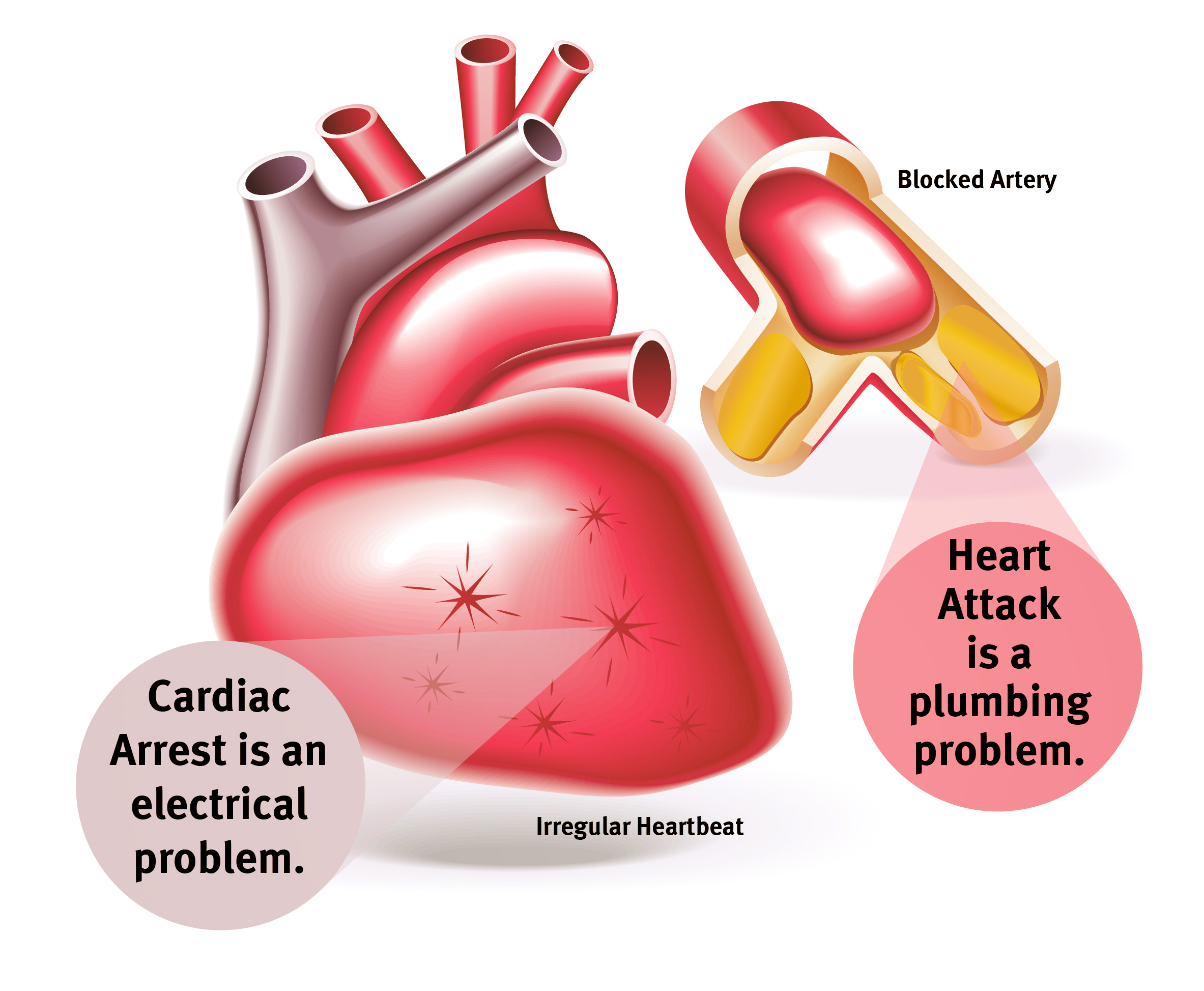 Heart Aattack VS Cardiac Arrest